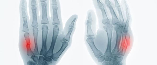 كسور اليد: الأعراض والأسباب والعلاج