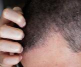 التهاب فروة الرأس