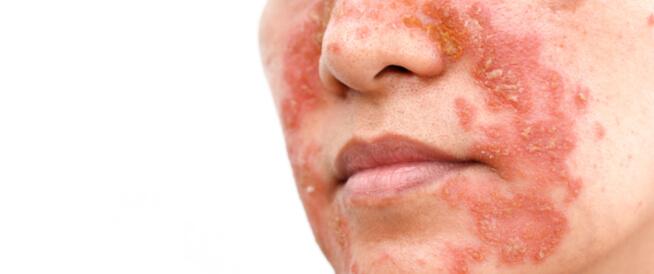 دليلك الشامل عن التهاب الجلد الدهني