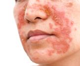 التهاب الجلد الدهني