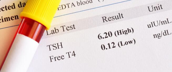 تحليل Tsh عند النساء معلومات تهمك ويب طب