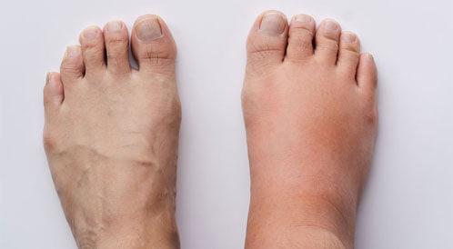 علاج زيادة الأملاح في الجسم بالاعشاب - ويب طب