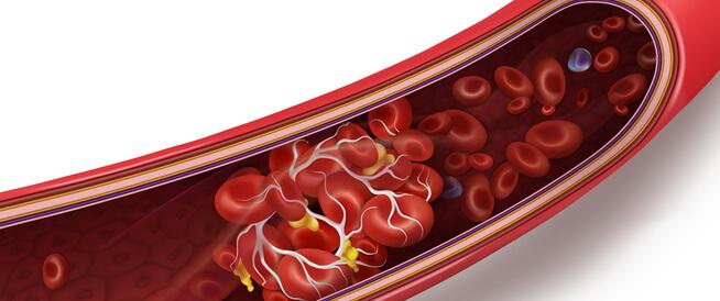 أسباب الجلطة الدموية: تعرف عليها