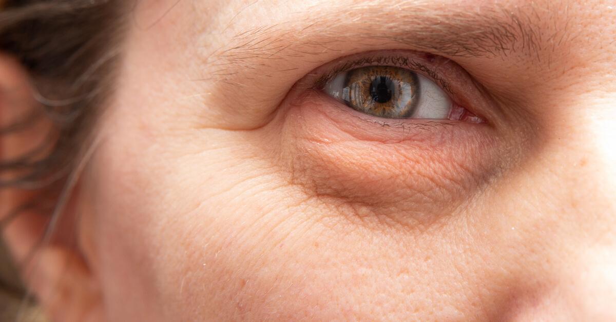8 أسباب لانتفاخ تحت العين ويب طب