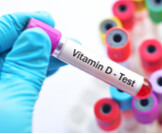 تحليل فيتامين د