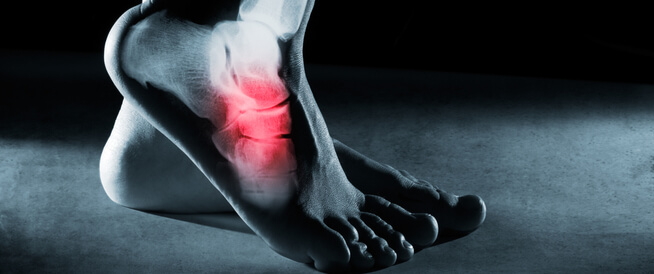 كسر القدم أهم المعلومات التي عليك معرفتها ويب طب