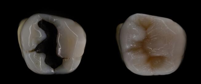 ما يجب أن تعرفه عن حشو الأسنان