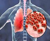 الالتهاب الرئوي: أهم المعلومات