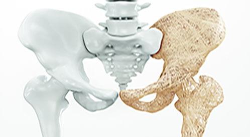 حقنة هشاشة العظام: