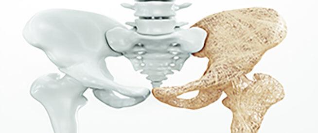 حقنة هشاشة العظام: إليك كل ما يهمك عنها