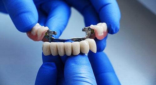 جسر الأسنان: أنواعه، فوائده، ومساوئه