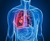أعراض سرطان الرئة المتقدم