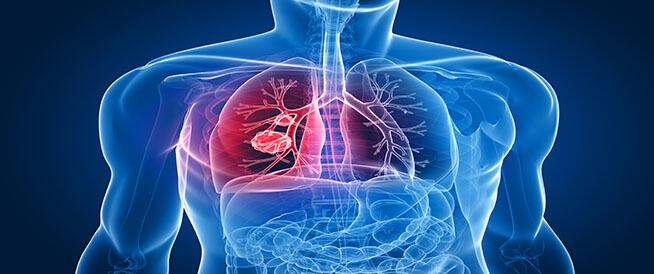 أعراض سرطان الرئة المتقدم ومعلومات هامة عنه