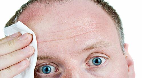 ما أسباب تعرق الرأس؟ وكيف يمكن الحد منه؟