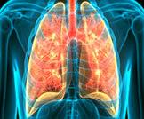 أعراض وأسباب ثقب الرئة