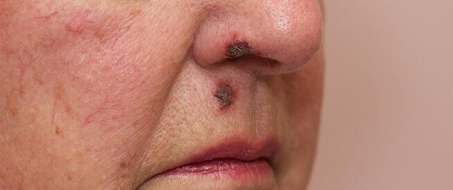 الحصف: مرض جلدي معدي