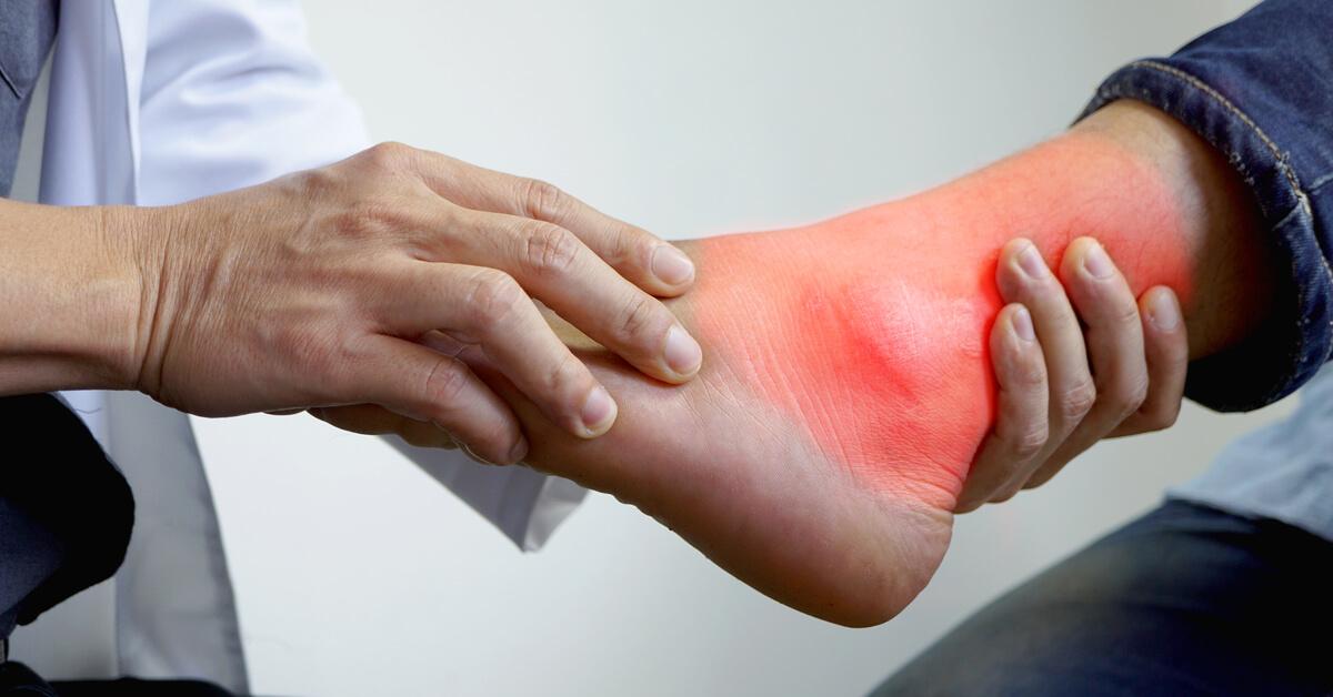 أعراض النقرس ومضاعفاته ويب طب