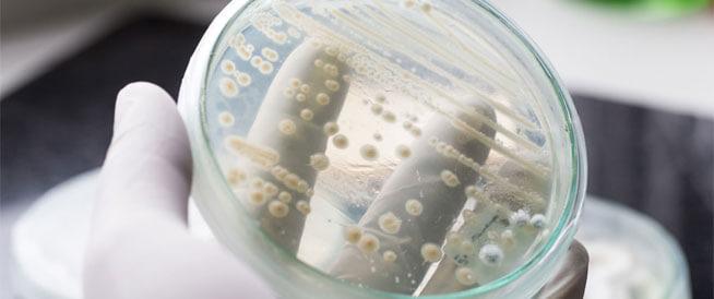 طرق طبيعية لعلاج فطر الكانديدا المهبلي