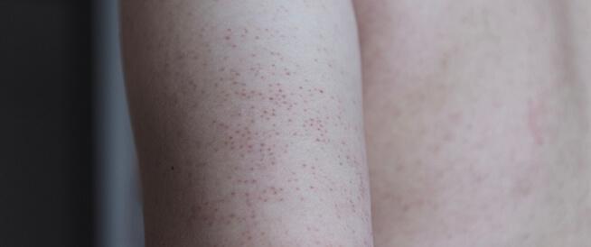 ما هو جلد الوزة؟