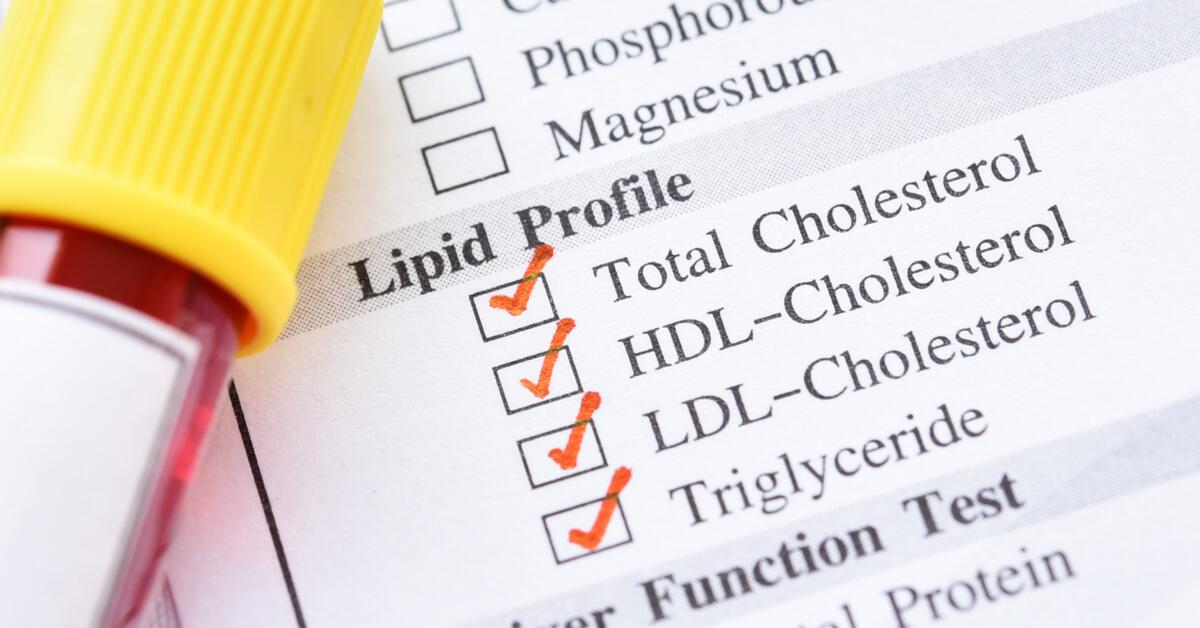 تعرف على فحص الكوليسترول الضار Ldl ويب طب