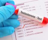 ماذا تعرف عن هرمون التستوستيرون؟