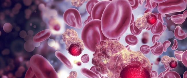 أسباب وأعراض سرطان الفم