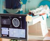 العلاج الإشعاعي