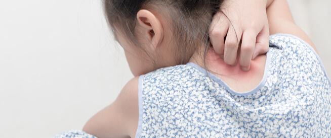 الصدفية عند الأطفال: دليلك الشامل