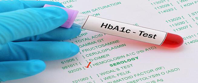 ما هو فحص الهيموغلوبين السكري HBa1c