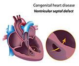 ثقوب القلب عند الأطفال: أهم المعلومات