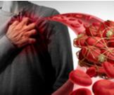 أعراض انسداد شرايين القلب