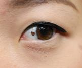 أعراض سرطان العين