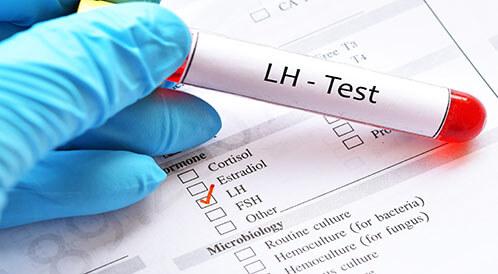 ما هو تحليل Lh وماذا تعني نتائجه ويب طب