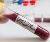 نسبة اليوريا الطبيعية في الدم