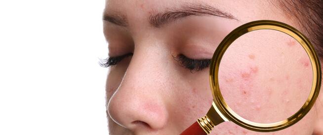 حبوب تحت الجلد في الوجه والجسم: أهم المعلومات