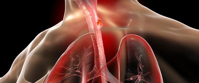ما هي أعراض سرطان المريء؟