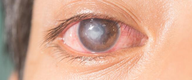قرحة القرنية: حالة خطيرة قد تصيب العيون