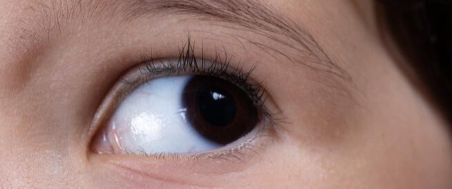 الرأرأة (العيون الراقصة): حالة غريبة قد تصيب عيونك