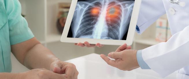الأمراض الصدرية: دليلك الشامل
