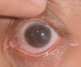 أعراض التهاب القرنية