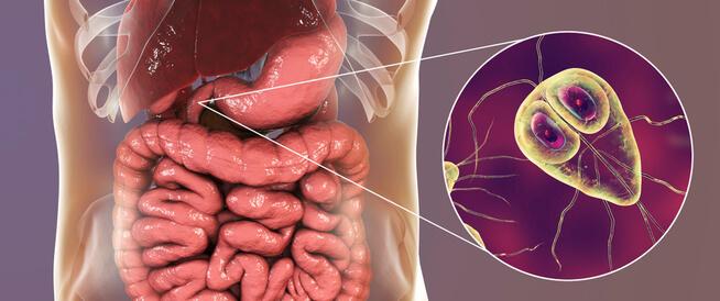 أعراض الجيارديا: تعرف عليها