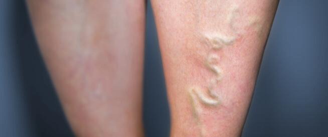 ما هو التهاب الوريد الخثاري؟
