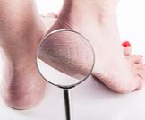 علاج خشونة القدمين