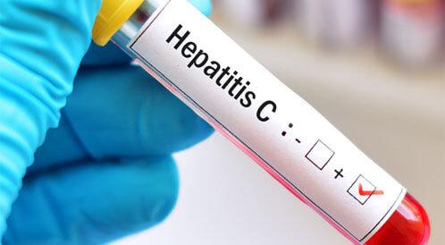 علاج التهاب الكبد بالاعشاب