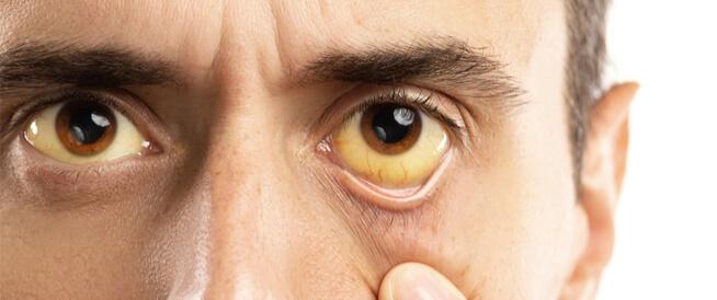 متلازمة جيلبرت: معلومات عامة عنها