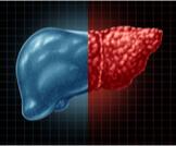 كيفية تحليل دهون الكبد: أهم المعلومات