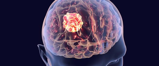 أعراض سرطان الدماغ في مراحله الأخيرة