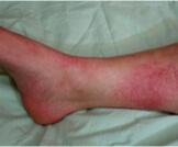 ما هو مرض الحمرة؟