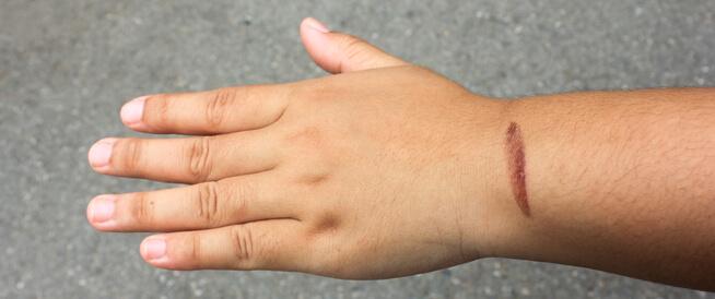 هل يمكن علاج الحروق بالدقيق؟