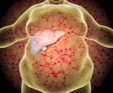 علاج دهون الكبد بالماء